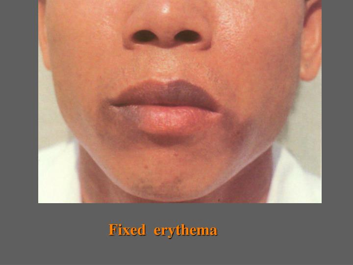 Fixed  erythema