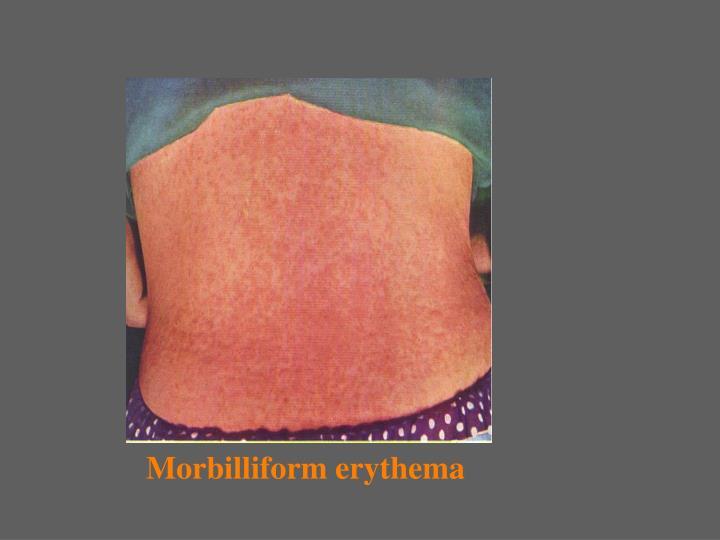 Morbilliform erythema