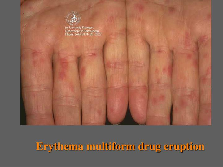Erythema multiform drug eruption