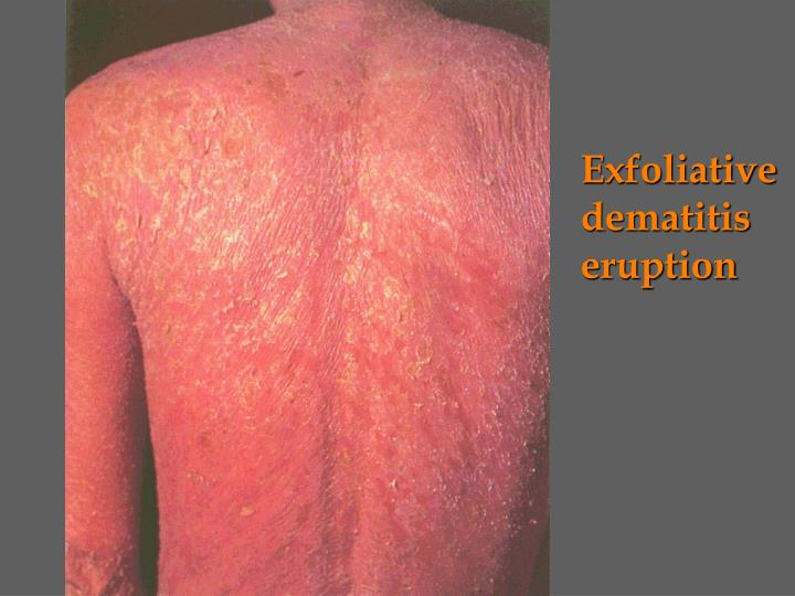 Exfoliative dematitis eruption