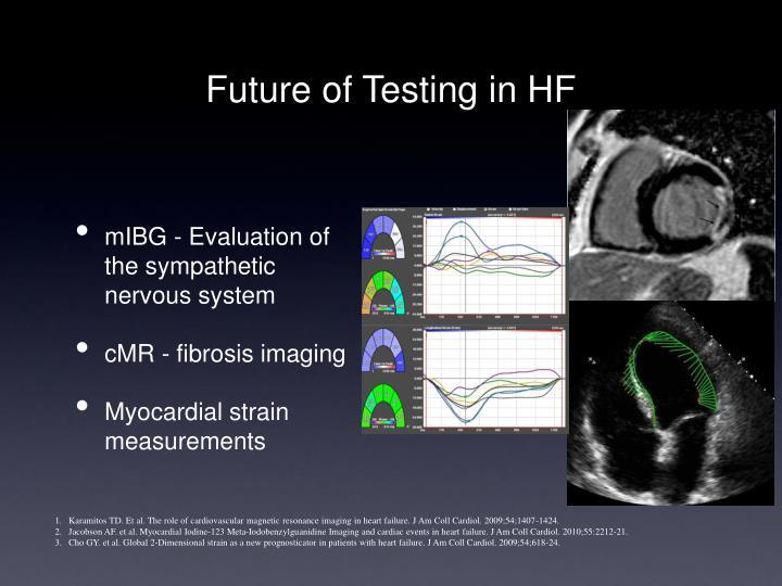 Future of Testing in HF
