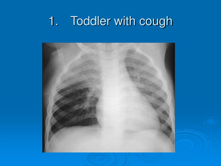 1 toddler with cough