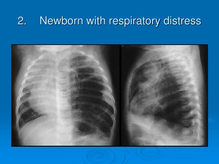 2 newborn with respiratory distress
