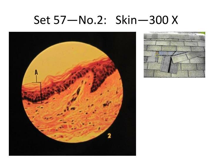 Set 57—No.2:   Skin—300 X