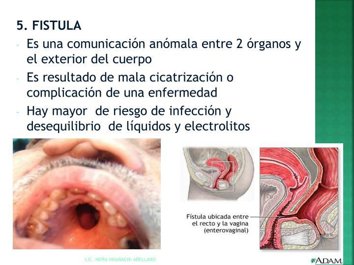 5. FISTULA