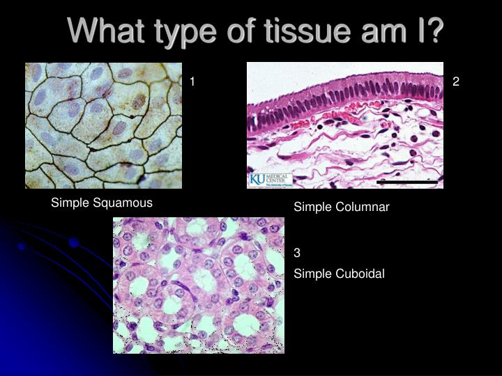 What type of tissue am i
