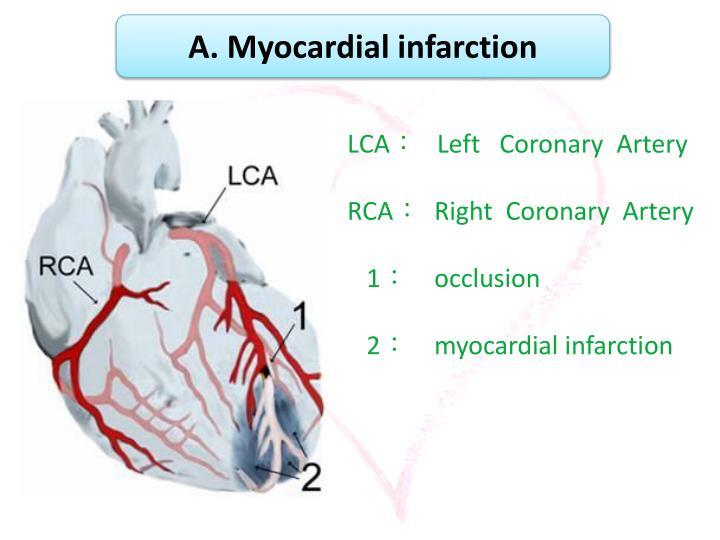 A. Myocardial infarction