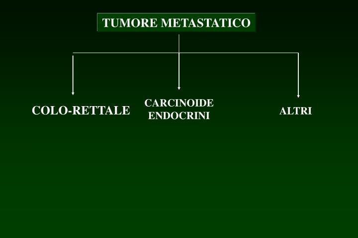 TUMORE METASTATICO