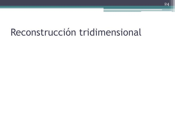 Reconstrucción tridimensional