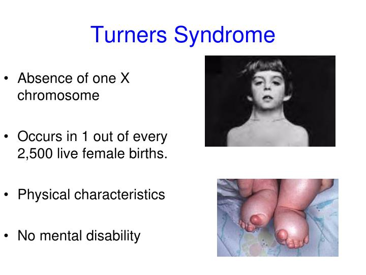 Turners Syndrome