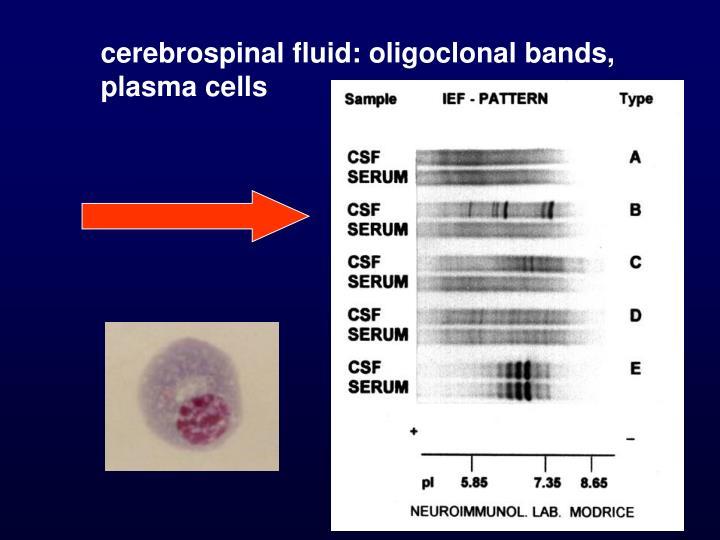 cerebrospinal fluid: oligoclonal bands, plasma cells
