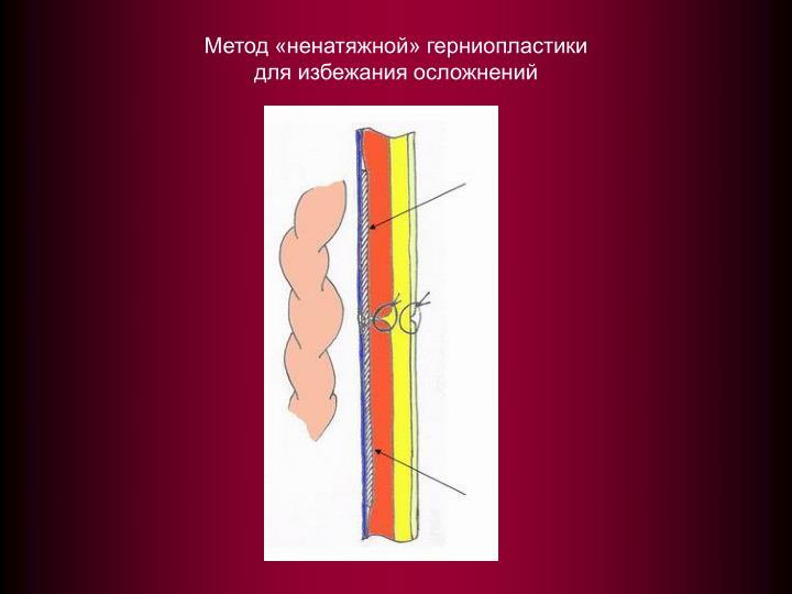 Метод «ненатяжной» герниопластики
