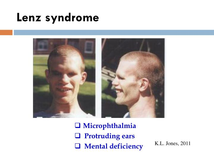 Lenz syndrome