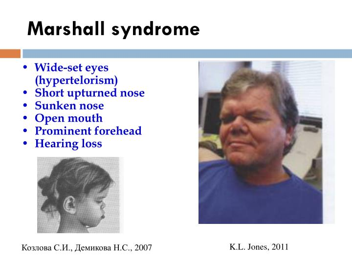 Marshall syndrome