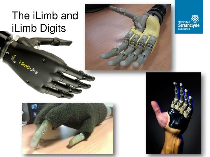 The iLimb and