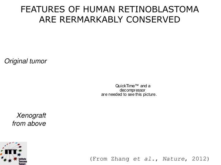 FEATURES OF HUMAN RETINOBLASTOMA