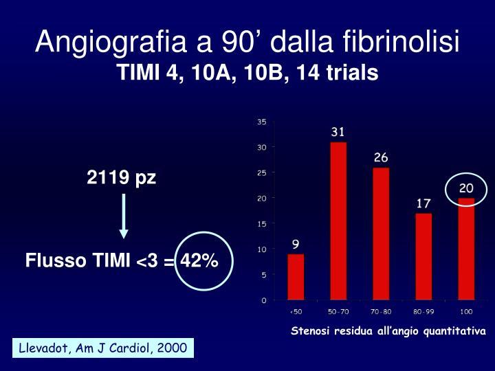 Angiografia a 90' dalla fibrinolisi