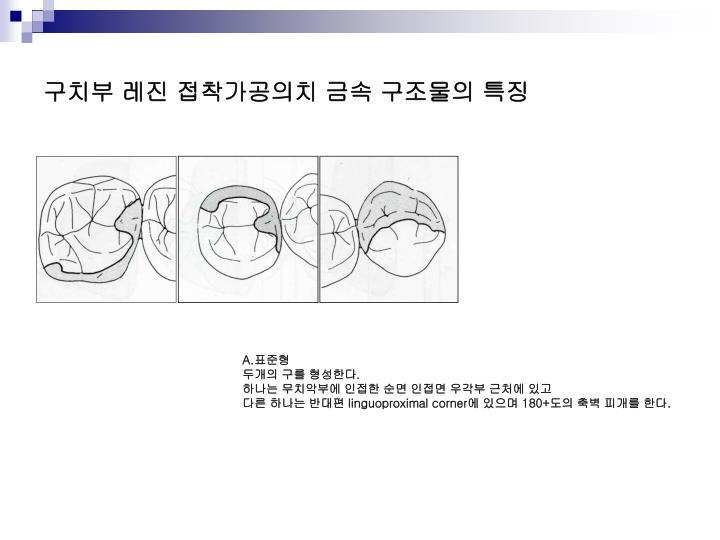 구치부 레진 접착가공의치 금속 구조물의 특징