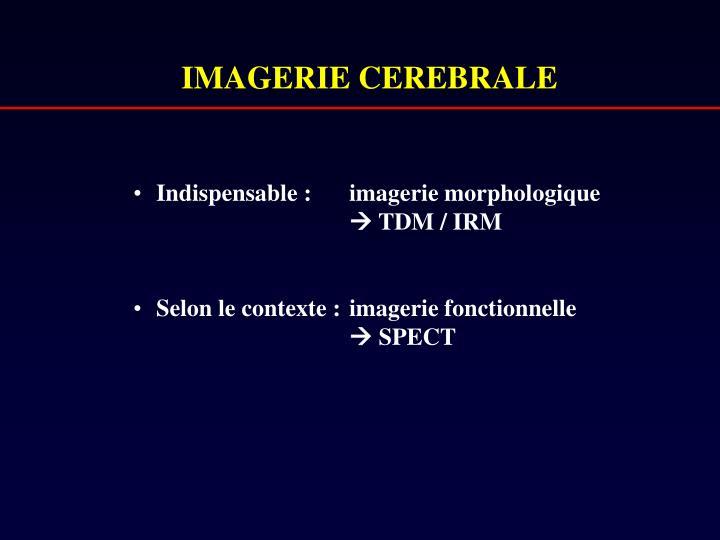 IMAGERIE CEREBRALE