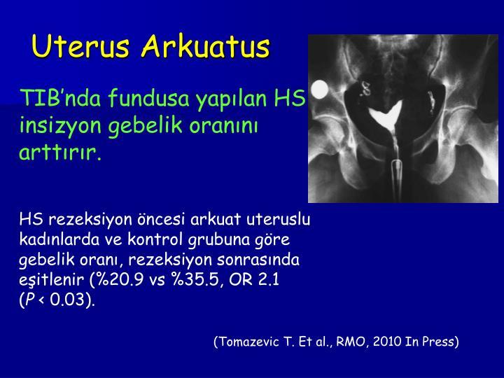 Uterus Arkuatus