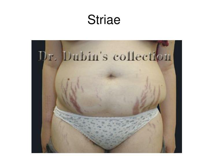 Striae