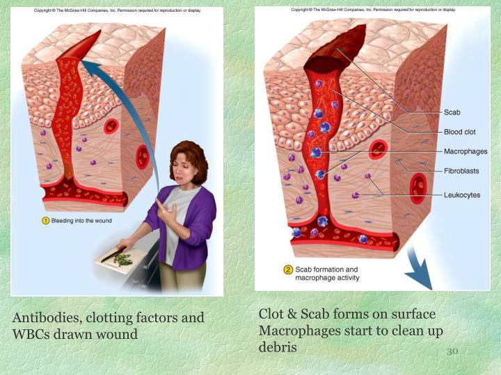 Clot & Scab forms on surface