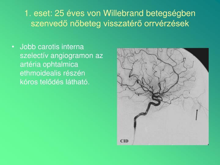 Jobb carotis interna szelectív angiogramon az artéria ophtalmica ethmoidealis részén kóros telődés látható.