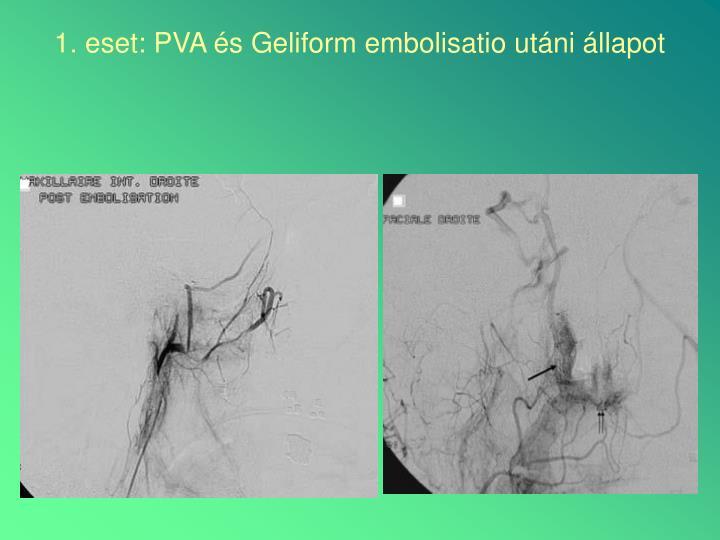 1. eset: PVA és Geliform embolisatio utáni állapot