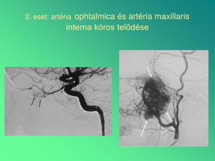 2. eset: artéria