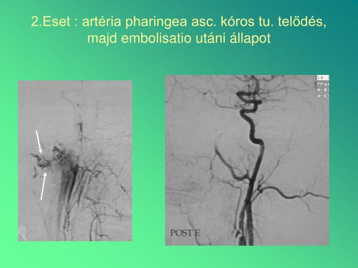 2.Eset : artéria pharingea asc. kóros tu. telődés, majd embolisatio utáni állapot