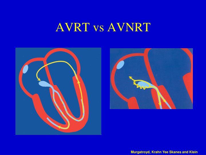 AVRT vs AVNRT