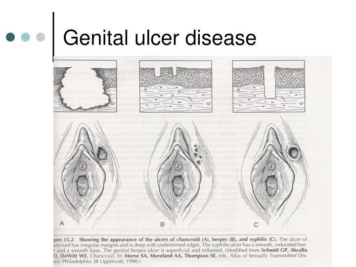 Genital ulcer disease