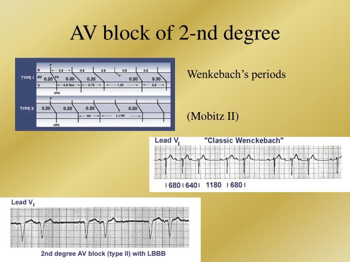AV block of 2-nd degree