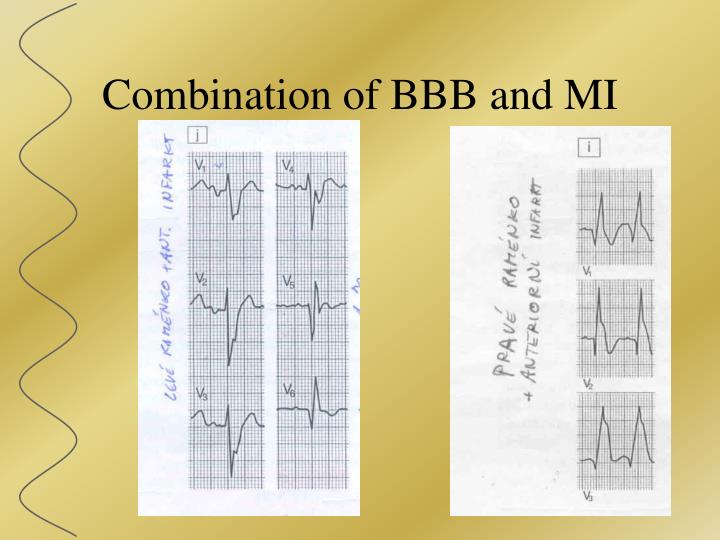 Combination of BBB and MI