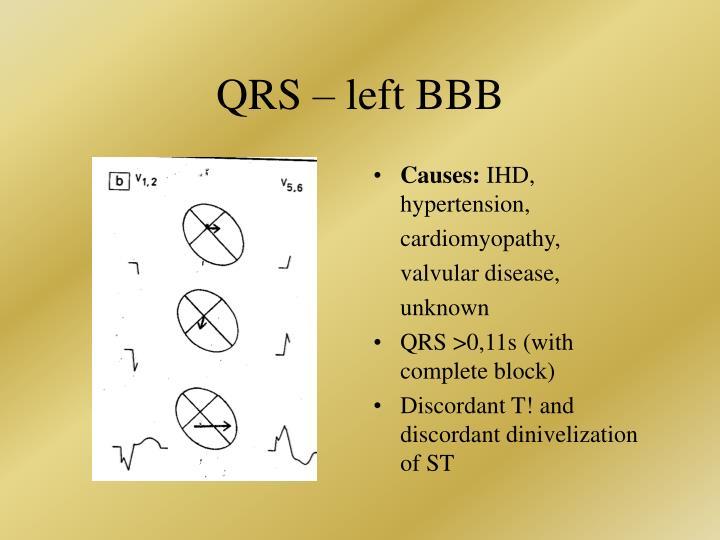 QRS – left BBB