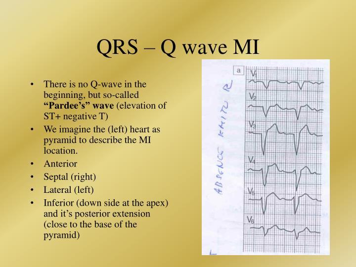 QRS –
