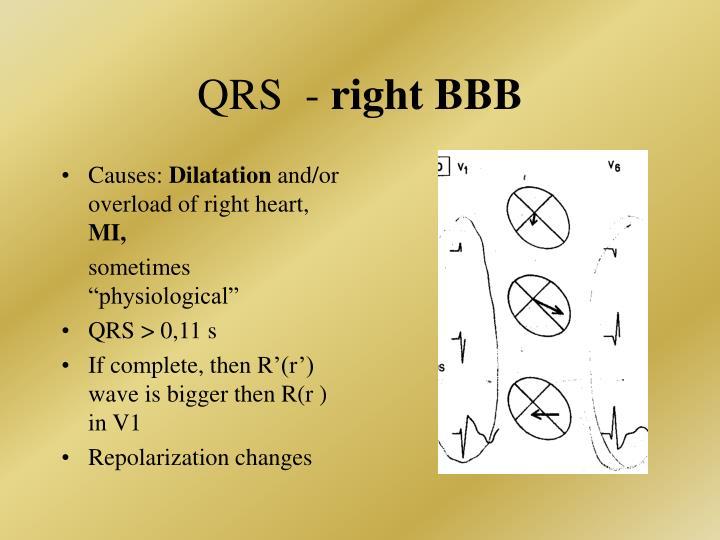 QRS  -