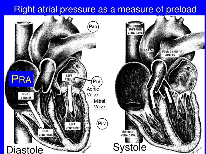 Right atrial pressure as a measure of preload