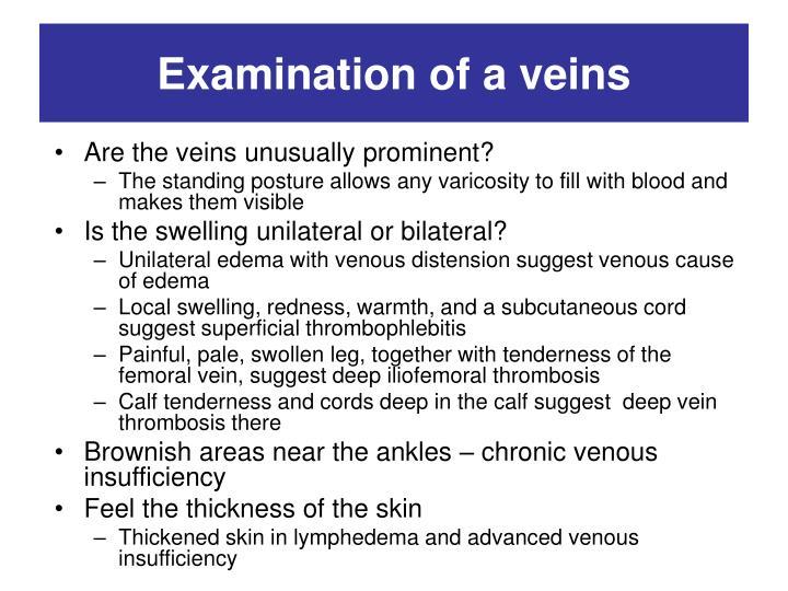 Examination of a veins
