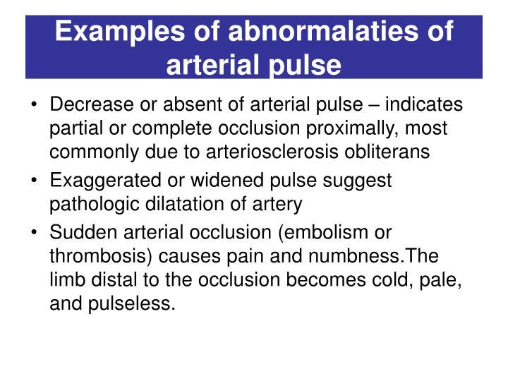Examples of abnormalaties of arterial pulse