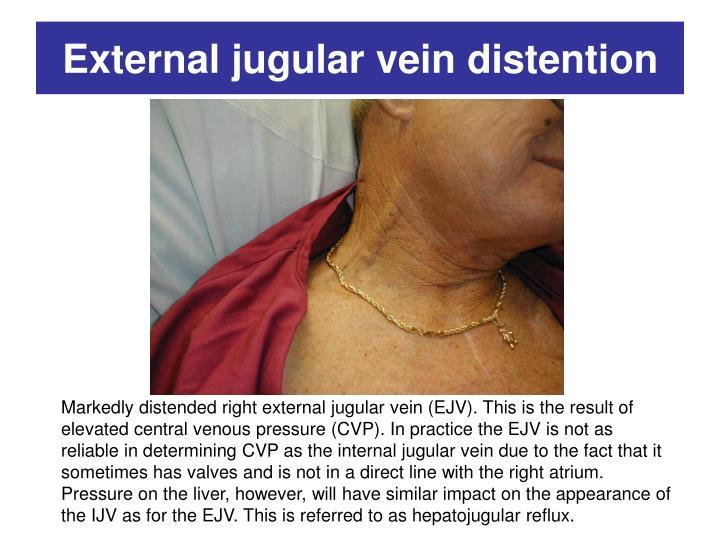 External jugular vein distention