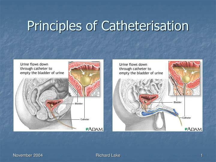 Principles of catheterisation