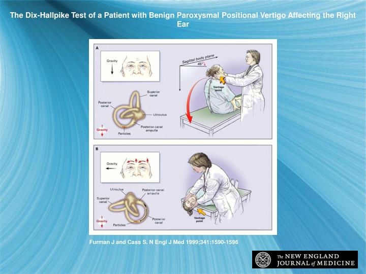 The Dix-Hallpike Test of a Patient with Benign Paroxysmal Positional Vertigo Affecting the Right Ear