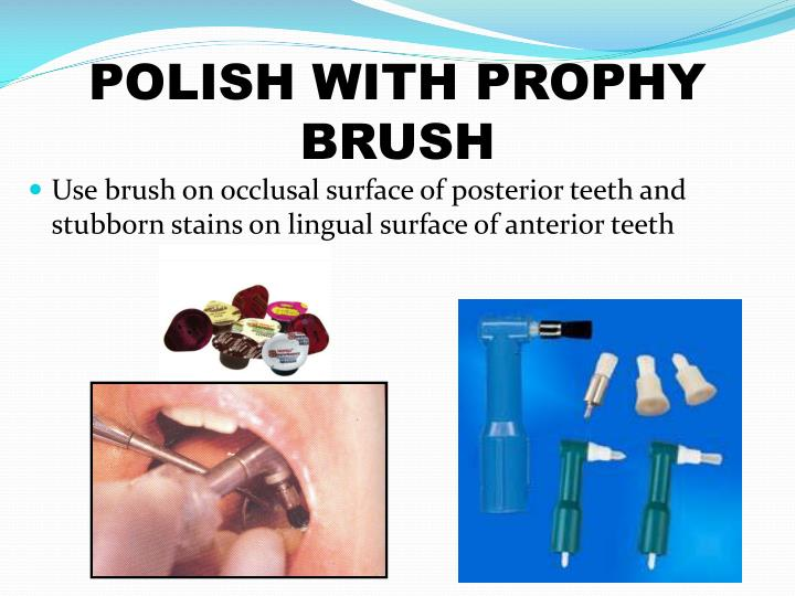 POLISH WITH PROPHY BRUSH