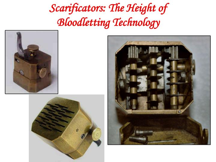 Scarificators: The Height of