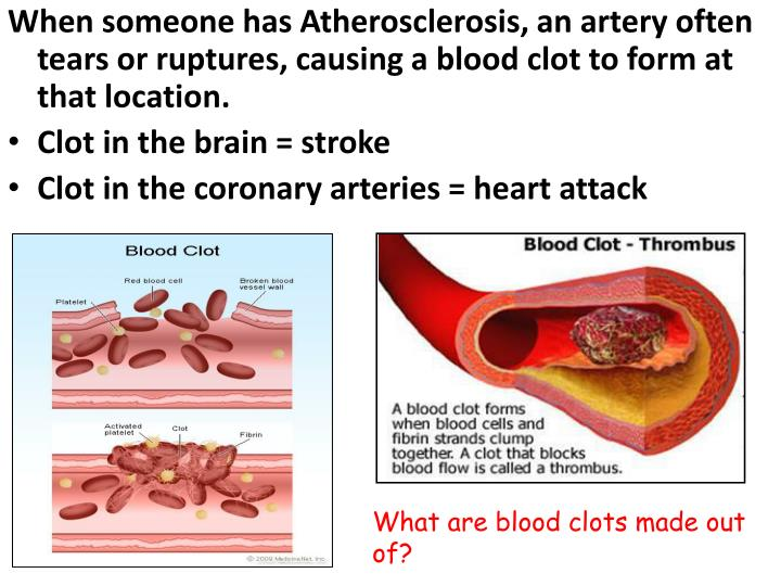 When someone has Atherosclerosis, an artery often tears or ruptures, causing a blood clot to form at that location.