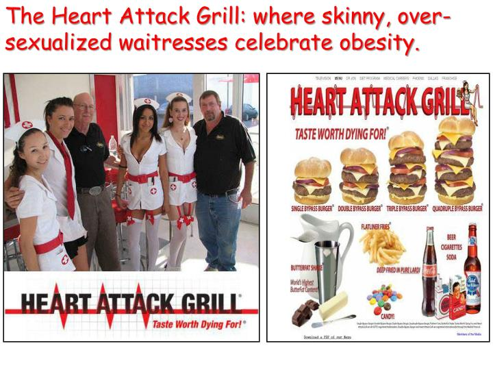 The Heart Attack Grill: where skinny, over-sexualized waitresses celebrate obesity.