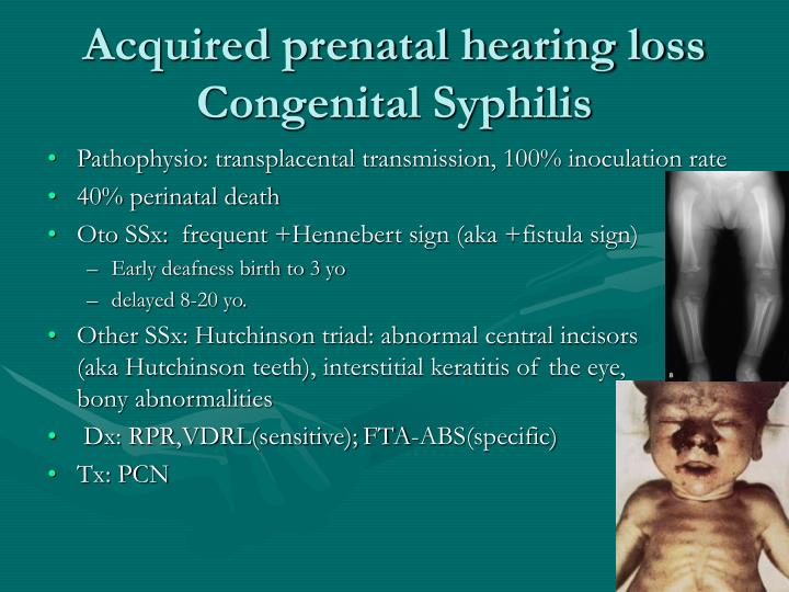 Acquired prenatal hearing loss