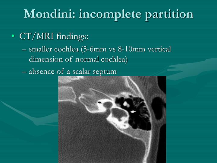 Mondini: incomplete partition