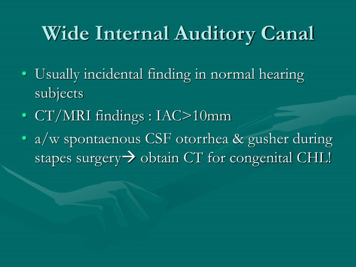 Wide Internal Auditory Canal